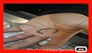 رها سازی حلقه انگشتری گیر کرده در انگشت شهروند 37 ساله در رشت /آتش نشانی رشت